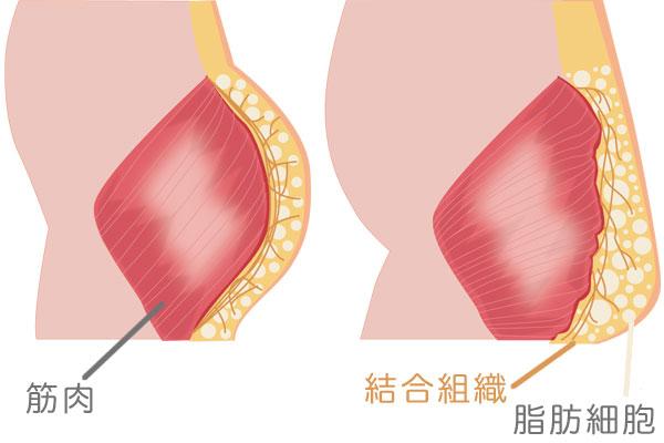 脂肪により皮膚の垂れを生じる