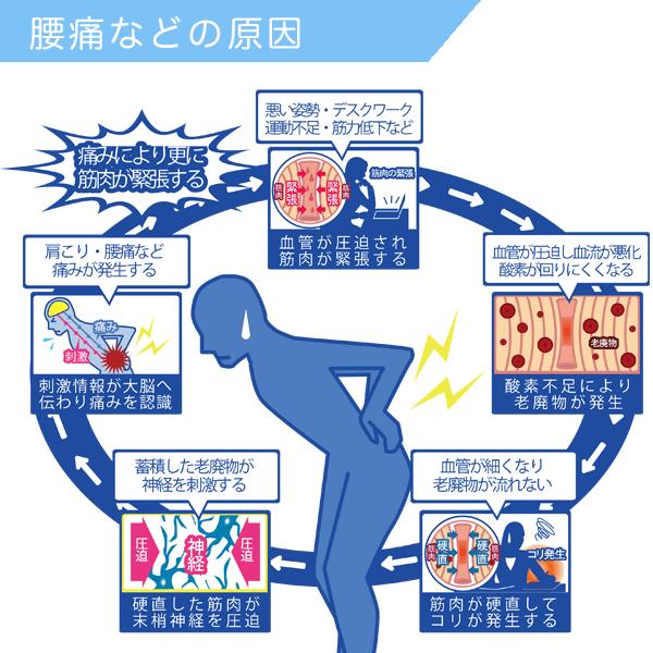 非特異的腰痛の原因(一例)