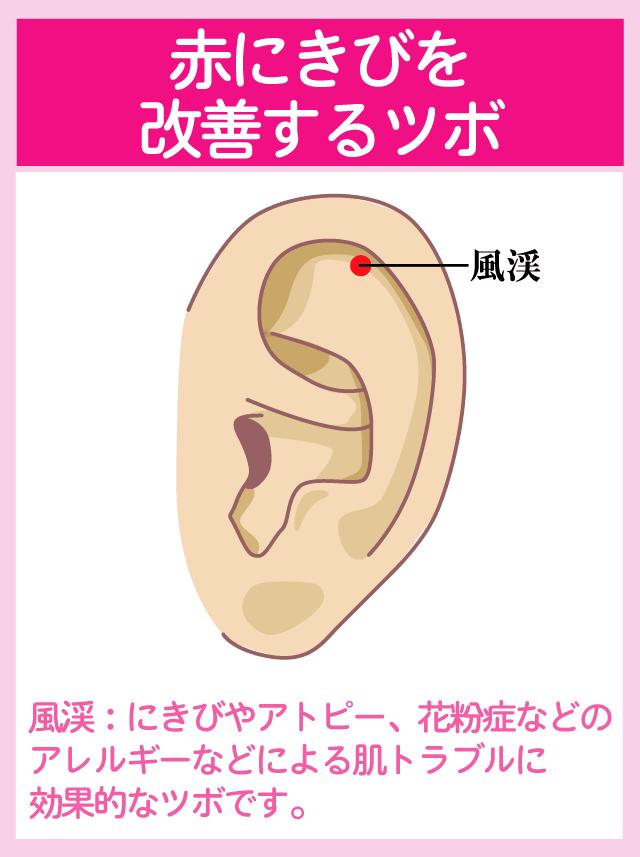 ニキビを改善する耳ツボ