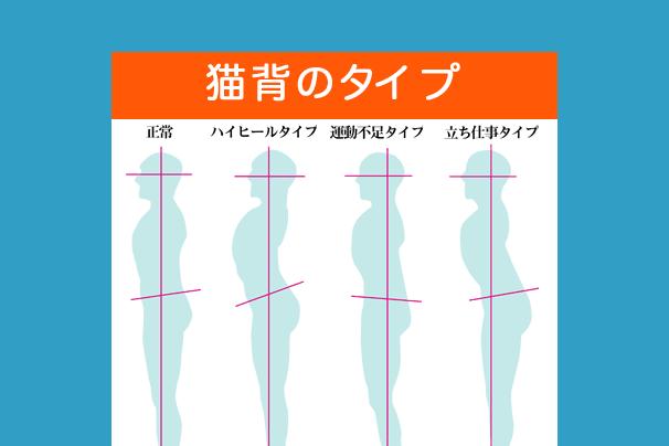 猫背の様々なタイプ