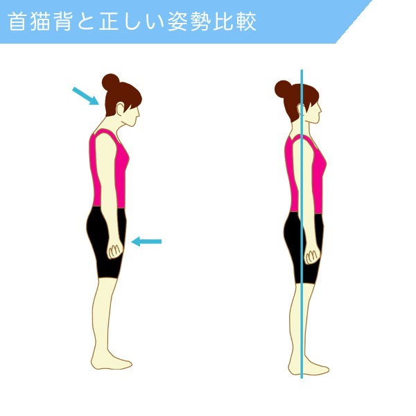 首猫背と正しい姿勢の比較図解