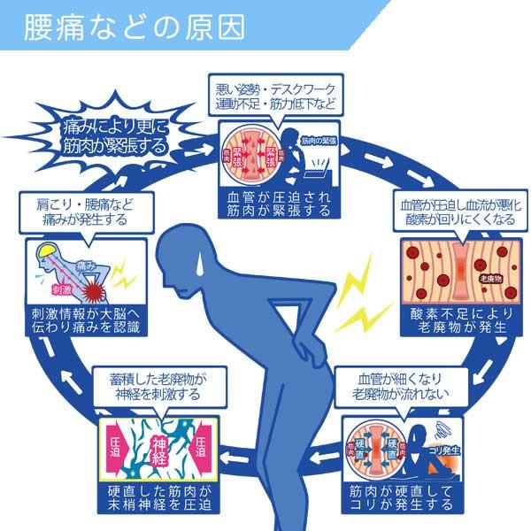 体が固くなることのデメリットは怪我や血行不良、むくみなどの原因になり、疲れやすく腰痛や肩こりなどの原因になる事の図解