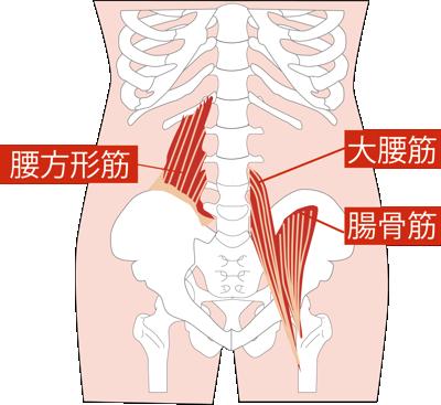 腰痛の原因に関わる腸腰筋(腸骨筋と大腰筋)・腰方形筋の図解