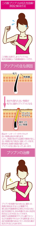 毛孔性苔癬(もうこうせいたいせん)の原因と解消法