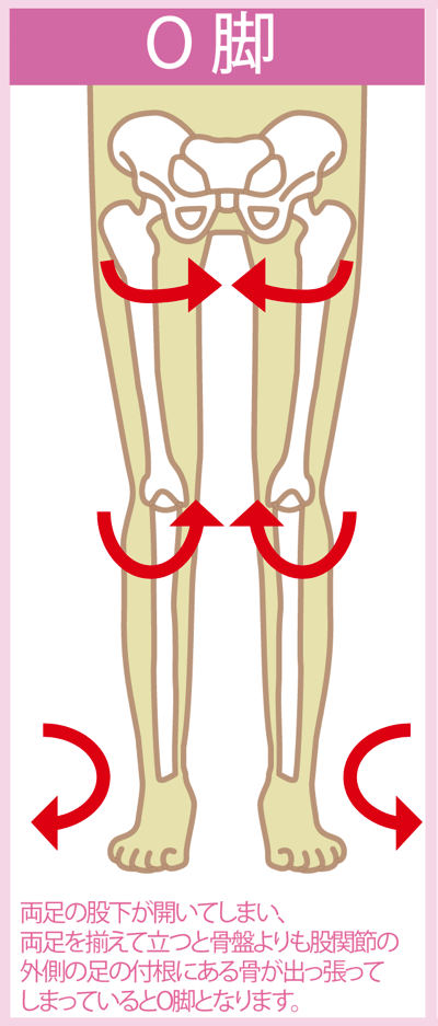 O脚の図解