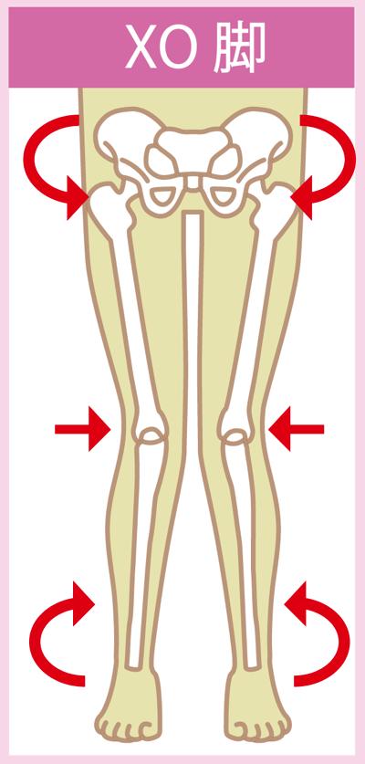 膝下のO脚(XO脚)の原因