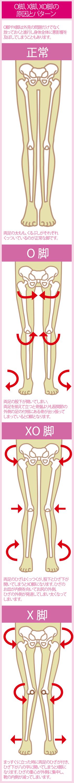 O脚やX脚の見た目の特徴