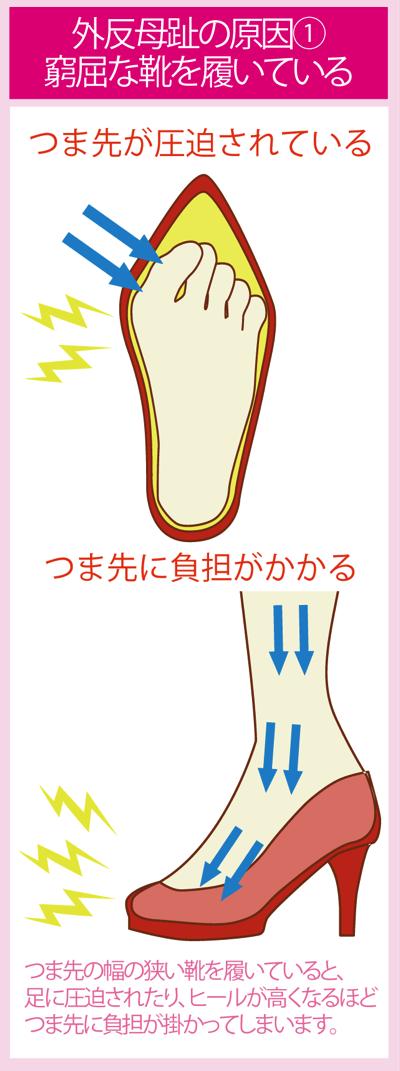 外反母趾の原因:1番の原因となる高いヒールやパンプス