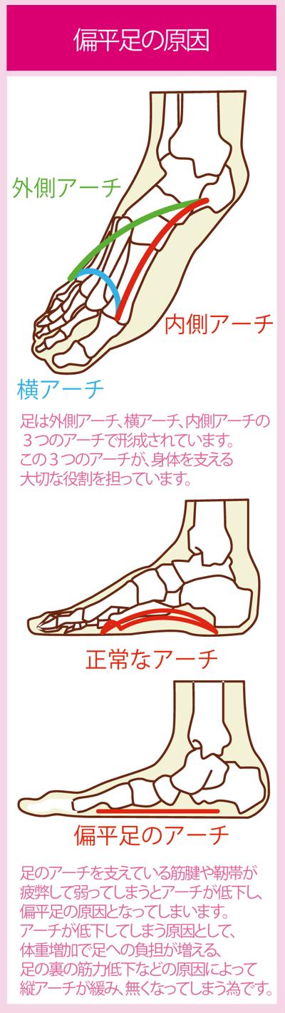 偏平足の原因と足のアーチの大切さ