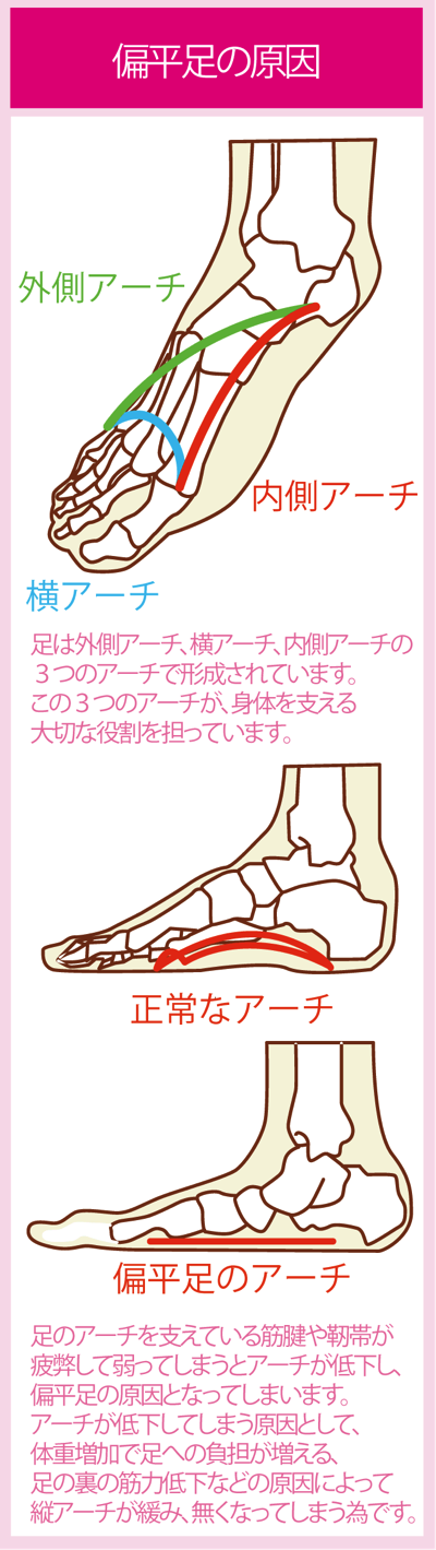 扁平足の原因と脚のアーチ図解
