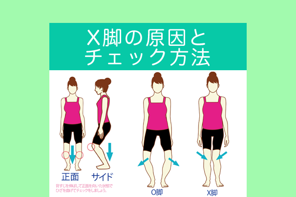 X脚の原因とチェック方法~O脚の違いと隠れO脚を見抜こう!