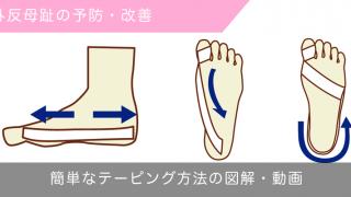 外反母趾を改善するテーピング方法