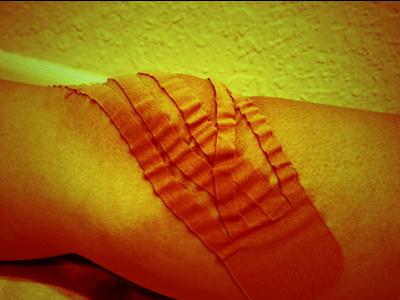 キネシオテープの腫れや痛みの軽減