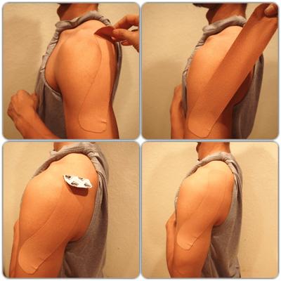 肩へのキネシオテープの貼り方