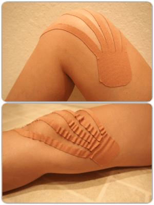 膝へのキネシオテープの貼り方:完成図
