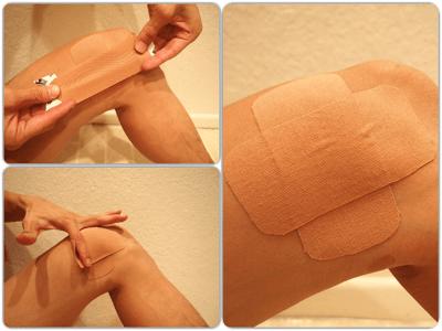 膝へのキネシオテープ:完成図