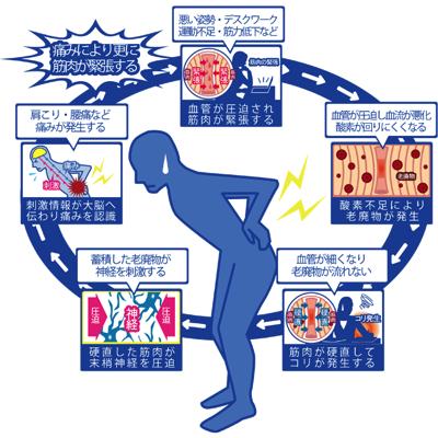 コリと痛みの連鎖を図解
