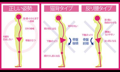 正しい姿勢と猫背タイプ、反り腰タイプ