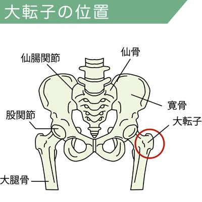 股関節と骨盤・大腿骨の関係図