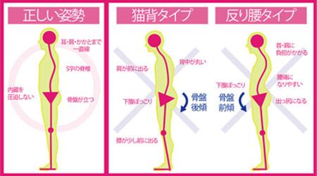 正しい姿勢と猫背・反り腰のタイプ