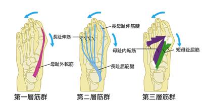 悪化していく外反母趾の図解