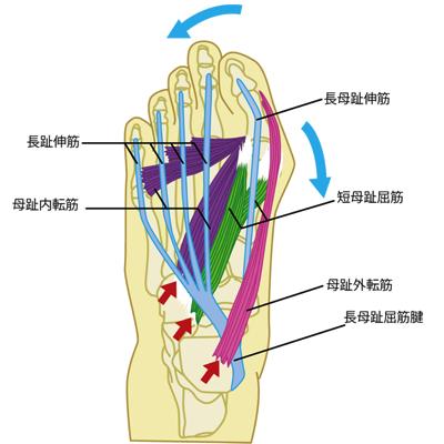 外反母趾の初期状態