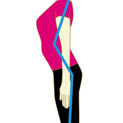 出尻は反り腰が原因の可能性
