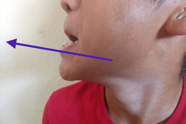 顎のストレッチ方法:顎を前に出してアイーン