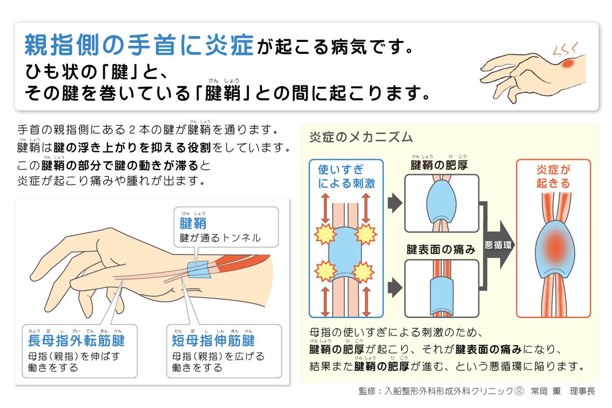 ドケルバン病(デェクエルヴァン氏病・親指の筋肉の腱鞘炎)が起こる原因とメカニズムの図解